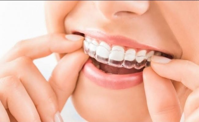 Be familiar with the pros of Invisalign